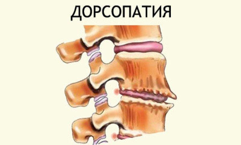Дорсопатия грудного отдела позвоночника: признаки, лечение