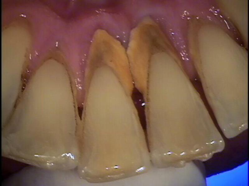 Зубной камень: чем опасен, виды, причины, устранение