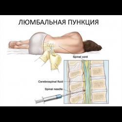 Пункция спинного мозга - для чего проводится, риски, осложнения