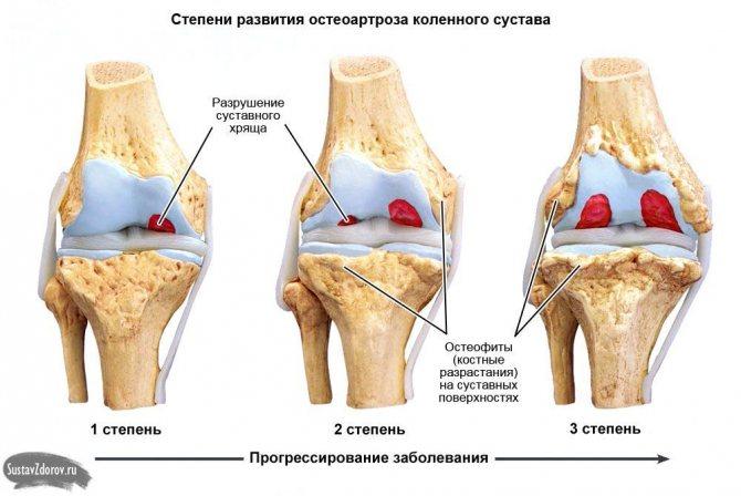 Гонартроз 2 степени коленного сустава: что это такое, симптомы и причины, методы диагностики, лечения и профилактика