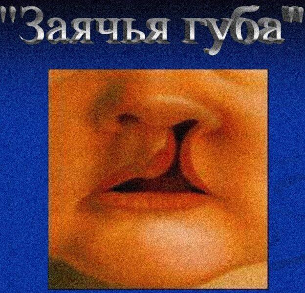 Заячья губа и волчья пасть: фото до и после операции, причины возникновения - медицина - здорово!