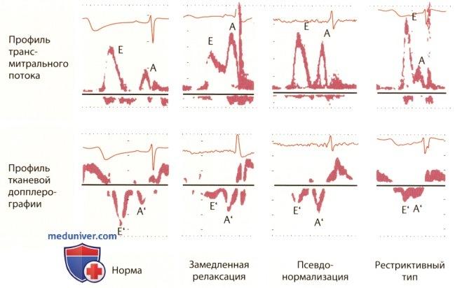 Диастолическая дисфункция левого желудочка 1, 2, 3 типа