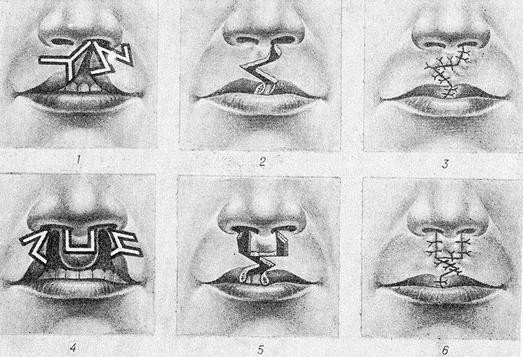 Заячья губа после операции. заячья губа: причины возникновения, виды патологии, способы устранения недуга - здоровая спина