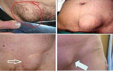 Паховая грыжа у мужчин: причины, симптомы и лечение