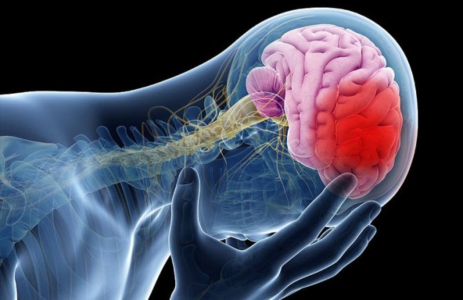 Стволовой инсульт: признаки, виды, последствия, лечение и профилактика
