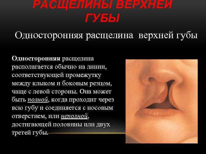 Заячья губа. часть 1. введение. показания. анатомия. противопоказания