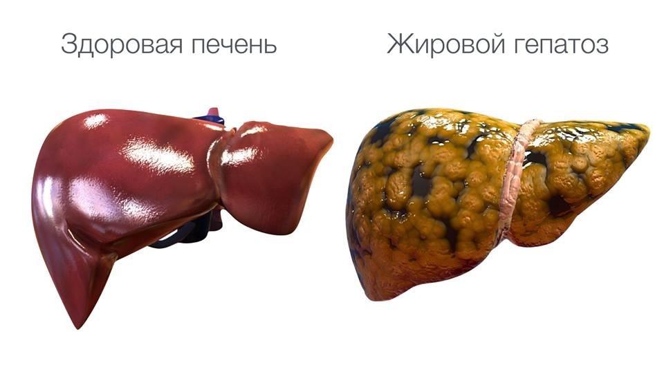 Жировой гепатоз печени: симптомы, лечение, признаки. стеатогепатоз. стеатоз печени.