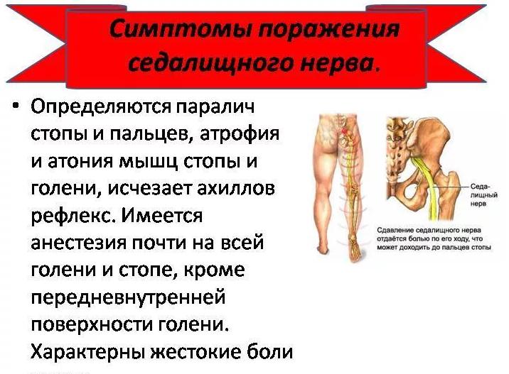 Седалищный нерв - симтомы, способы лечения, ответы на вопросы