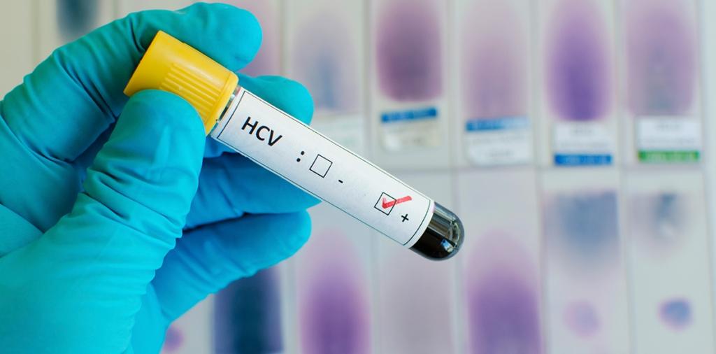 Тимоловая проба: понятие, норма в крови, повышена - причины