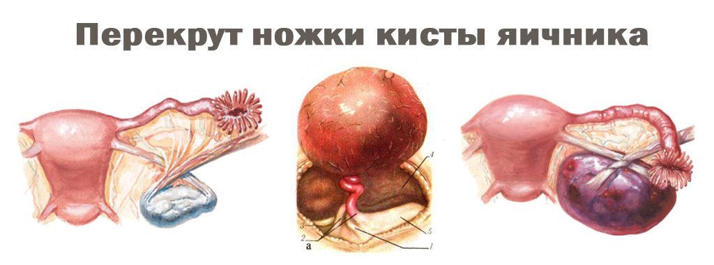 Как выглядит киста яичника на узи