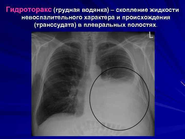 Опасен ли двусторонний гидроторакс лёгких и что это за болезнь?