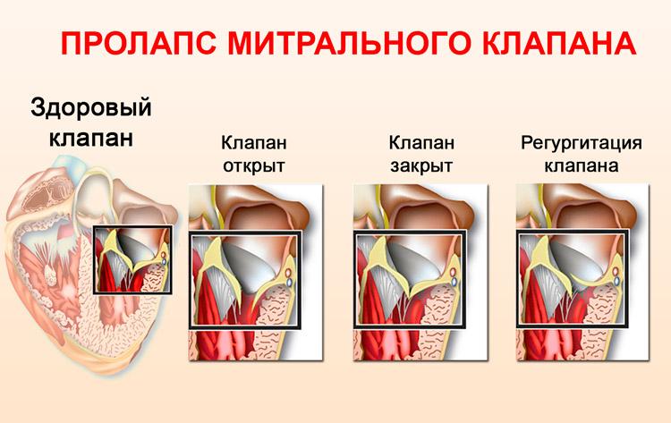 Пролапс митрального клапана 1 степени что это - здоров.сердцем