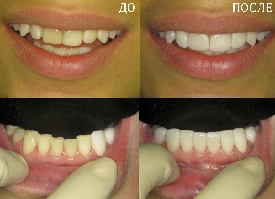 Виниры на зубы — что это такое: преимущества, недостатки, стоимость