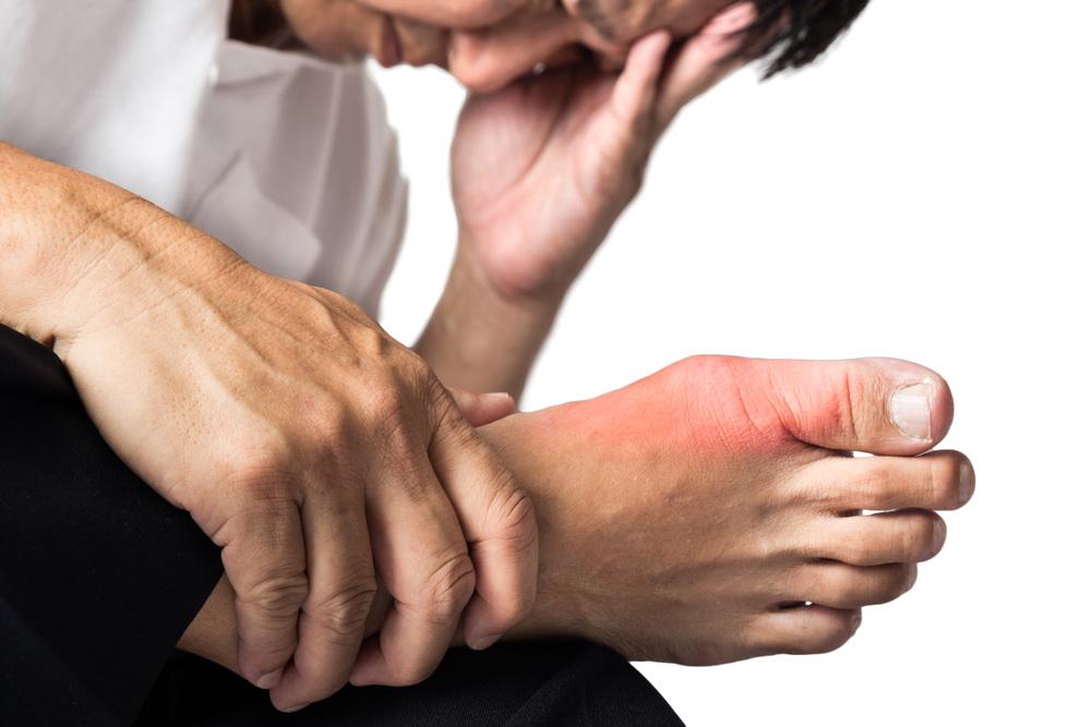 Полный обзор болезни подагра: причины, симптомы, диагностика и лечение