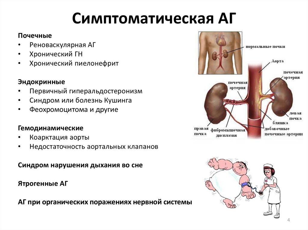 Как лечить реноваскулярную гипертензию и что это такое