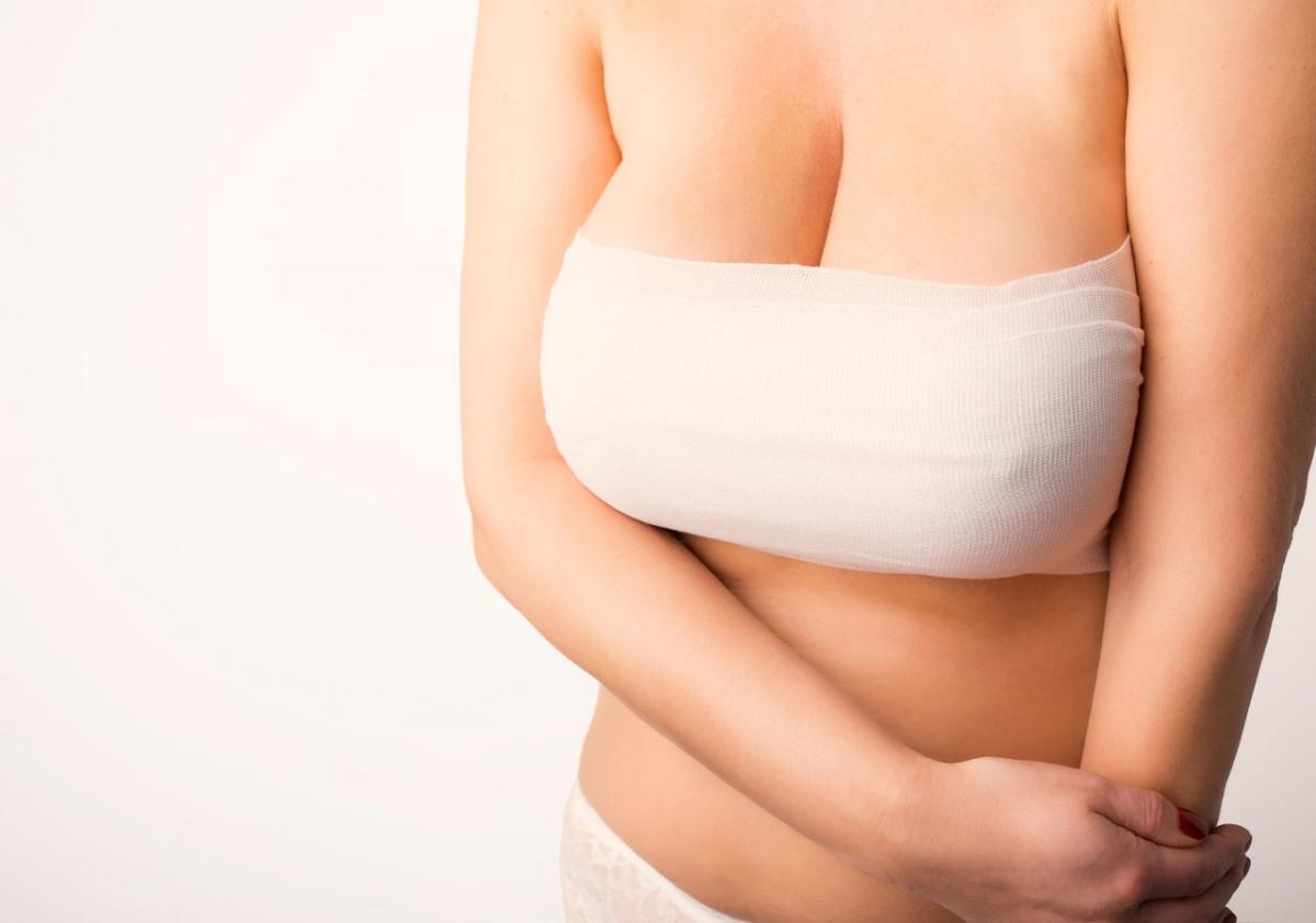 Маммопластика — википедия. что такое маммопластика