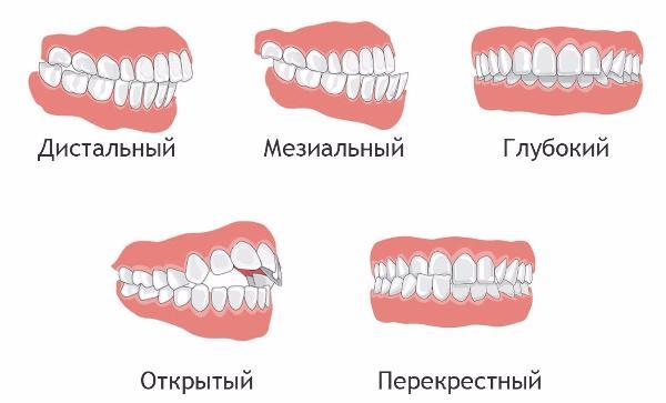 Виды прикусов зубов у человека, их характеристика и фото