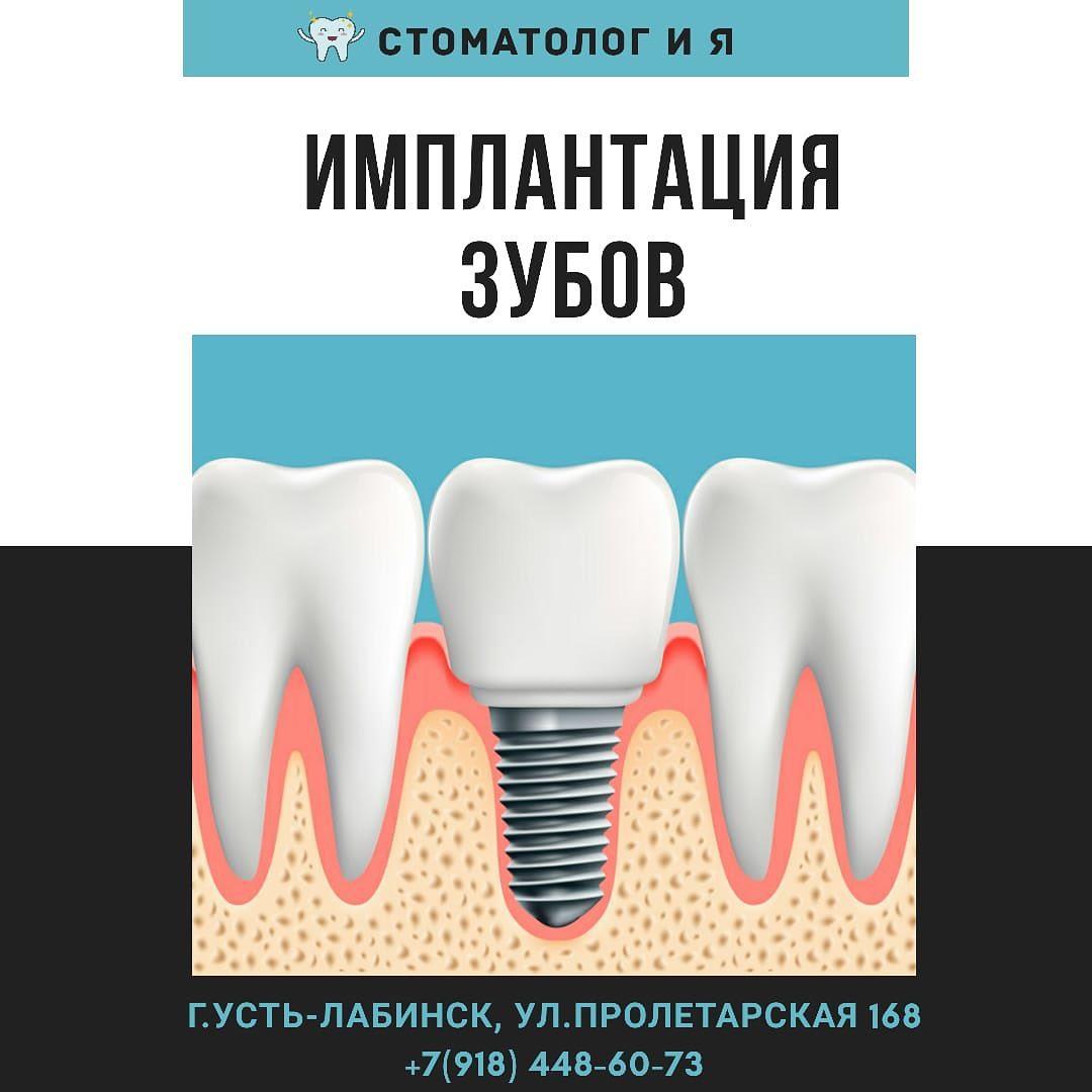 Что такое зубной имплант? все подробности имплантации в 2020 году