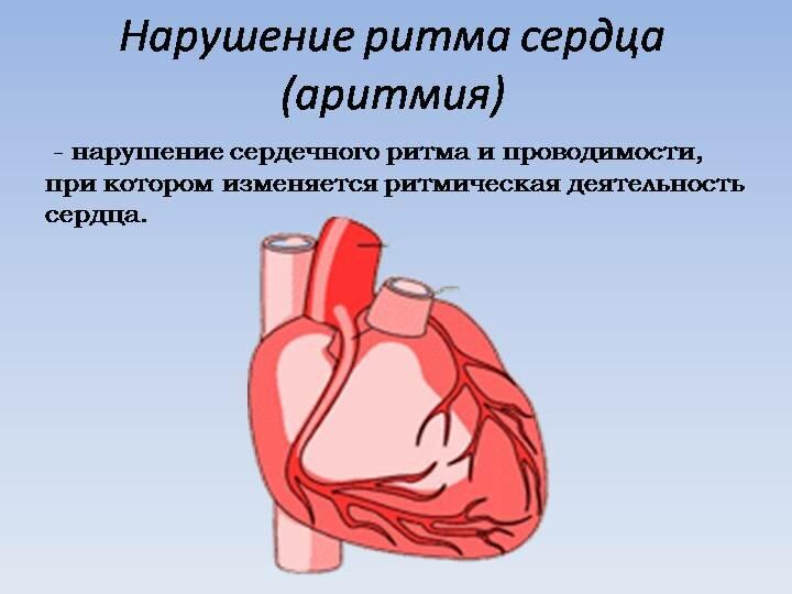 Аритмия сердца - симптомы, причины, лечение в москве у мужчин и женщин