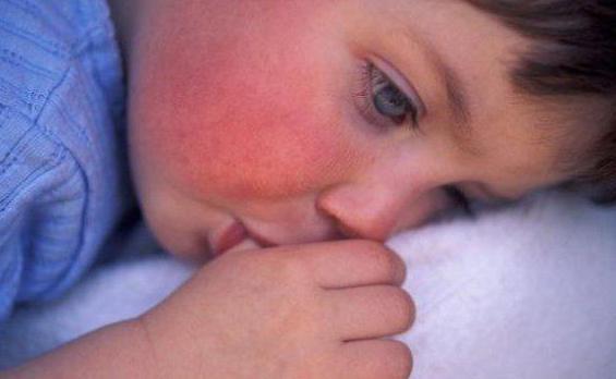 Гипертермия – что это? злокачественная гипертермия, белая, красная, эндогенная, экзогенная, нейрогенная