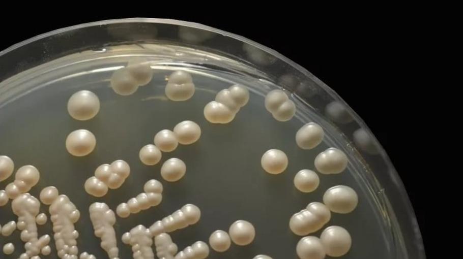 Candida albicans, кандида альбиканс: что это, анализ, лечение