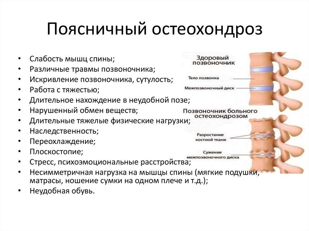 Лечение люмбоишиалгии в домашних условиях