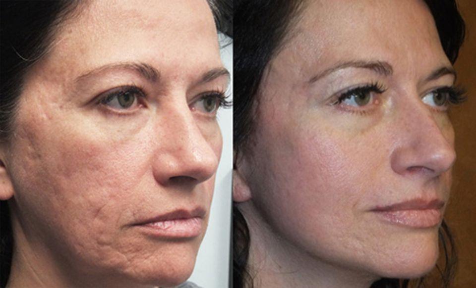 Prp терапия (процедура) и плазмо-лифтинг | медицинская косметология