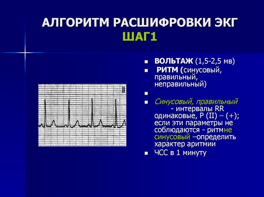 Кардиограмма сердца – как сделать, расшифровать и что показывает