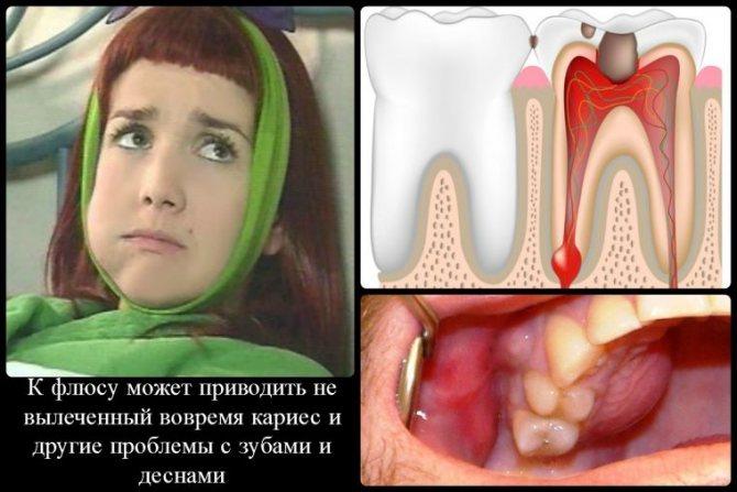 Что такое флюс зуба - стоматолог
