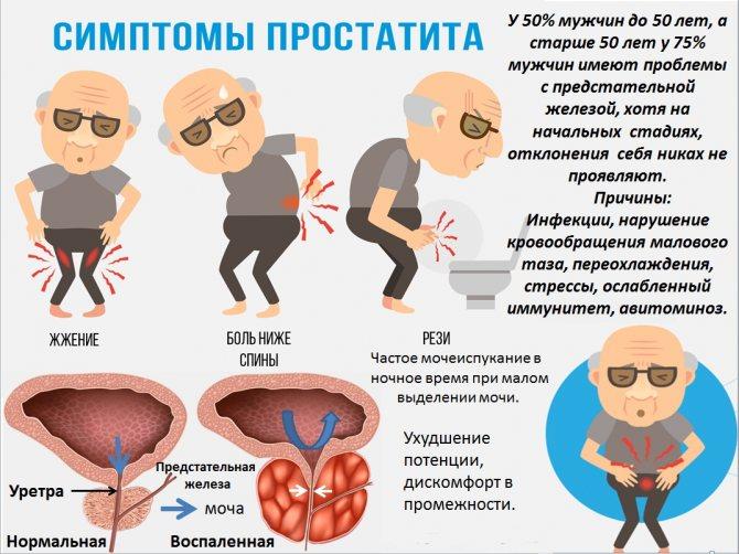 Что такое простата у мужчин: анатомия, функции, строение и заболевания