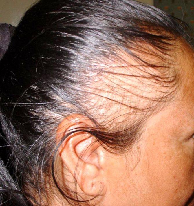 Алопеция (облысение): что это такое и фото проявлений, основные причины, а также методы лечения заболевания