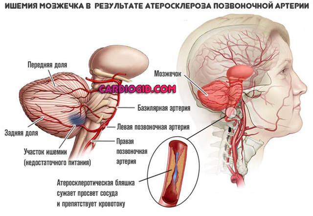 Церебральный атеросклероз и через какое время смерть — сердце