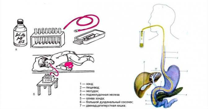 Дуоденальное зондирование: основные методы исследования желчи - kdmc