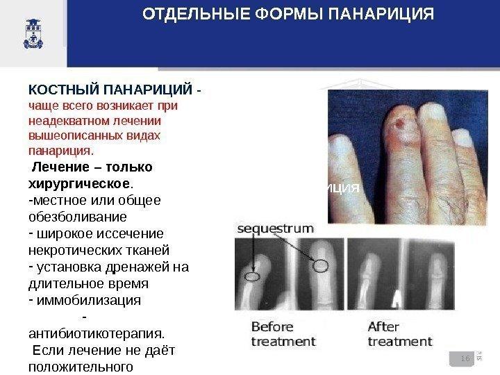 Виды панариция - особенности симптоматики и лечения всех видов