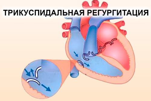 Аортальная регургитация 1 и 2 степеней у ребенка - симптомы и лечение