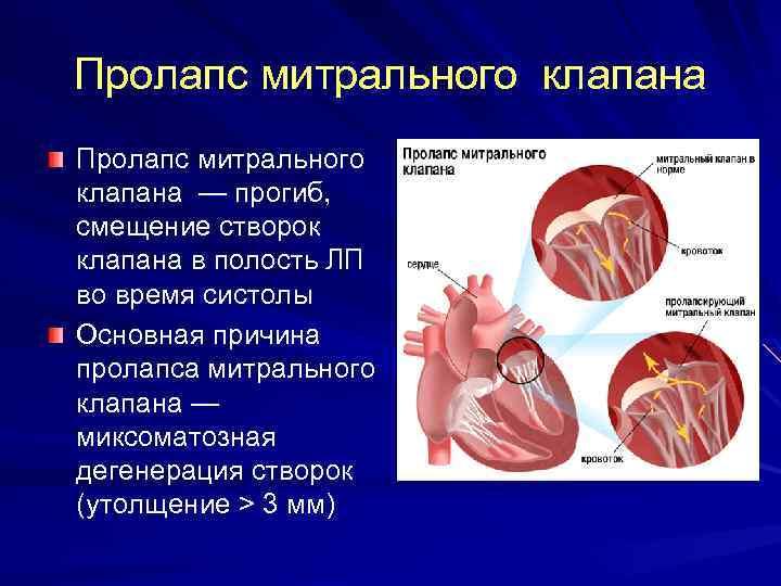 Пролапс митрального клапана с регургитацией 1 степени - здоров.сердцем