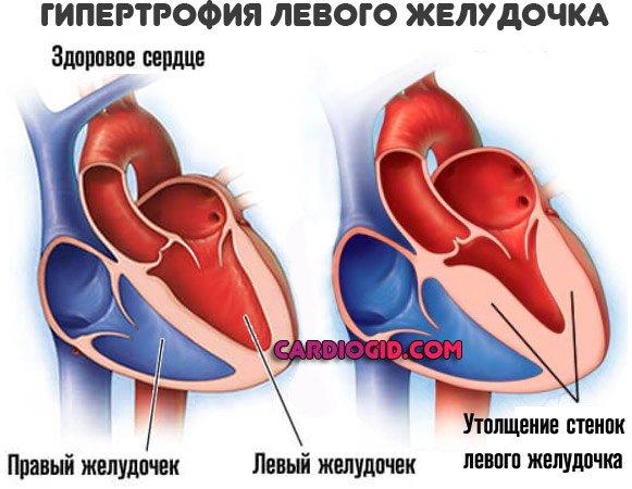 Гипертрофия сердца что это такое, причины и лечение