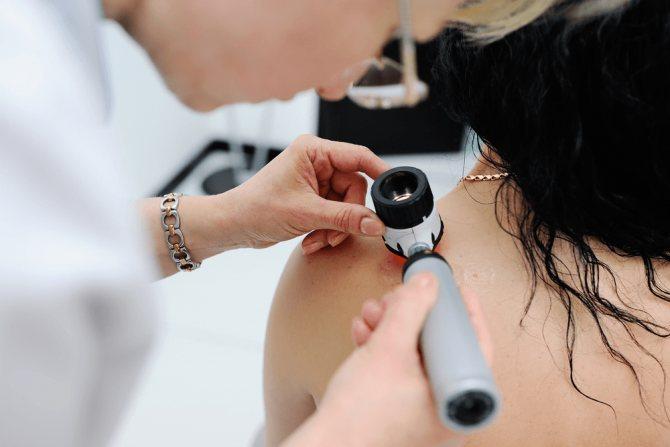 Дерматоскопия: виды дерматоскопов, принцип работы и клинические случаи | портал 1nep.ru