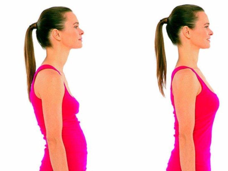Правильная осанка: как контролировать и держать спину красиво и прямо, профилактика нарушений