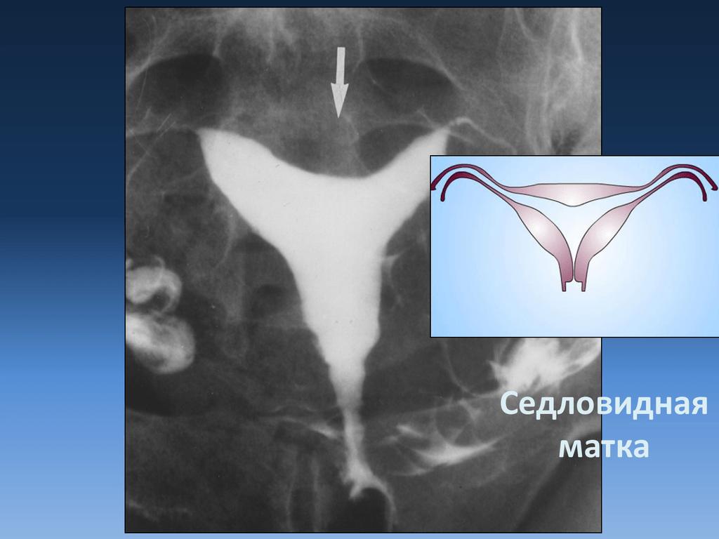 Двурогая матка — что это такое? беременность и роды, лечение и виды аномалии