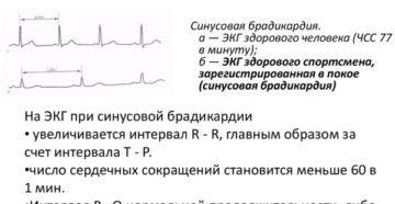 Можно ли лечить брадикардию сердца народными средствами?