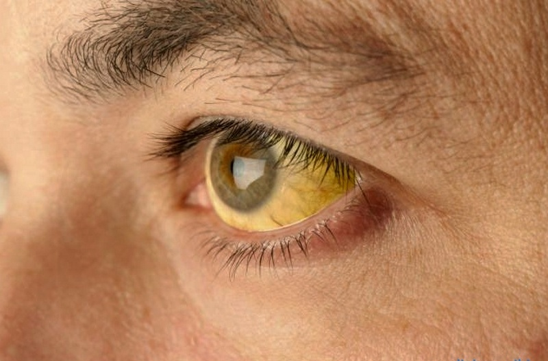 Что такое желтуха? типы и виды желтухи, симптомы и лечение