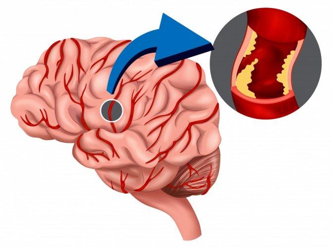 Обширный инсульт головного мозга: последствия и шансы выжить, ишемический и геморрагический тип, реабилитация, инсульт левого полушария, кома, после 80 лет - doktor-ok.com