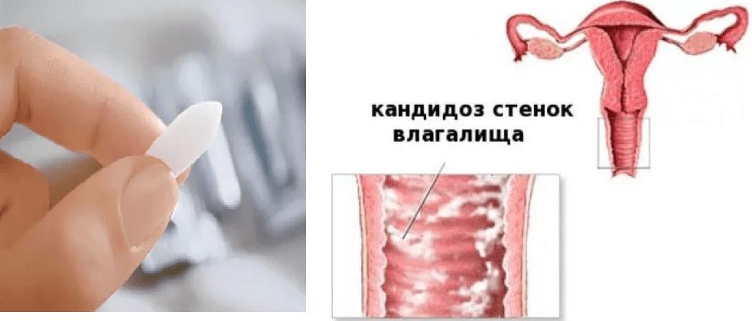 Кольпит симптомы и лечение у женщин