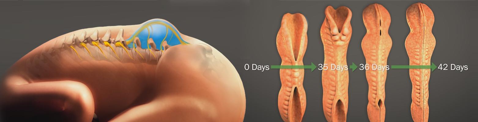 Спина бифида: характеристика патологии, симптомы, лечение