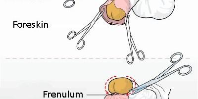 Что такое уздечка на головке полового члена у мужчин и что делать при ее надрыве, травме