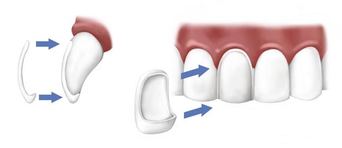 Виниры на зубы - что это такое, цены, виды, отзывы, фото до и после установки