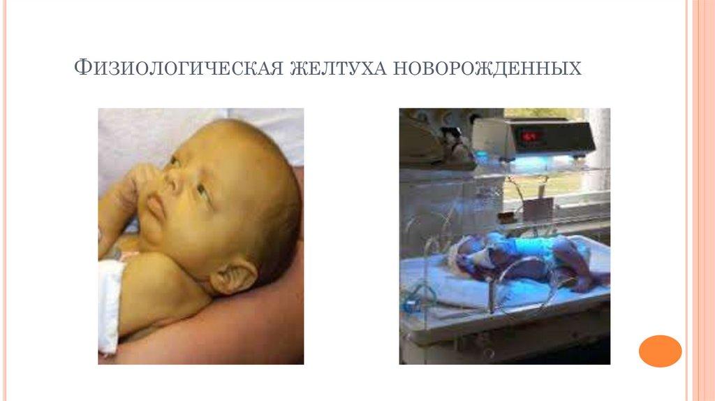 Механическая желтуха у новорожденных: что это такое, причины, лечение и последствия