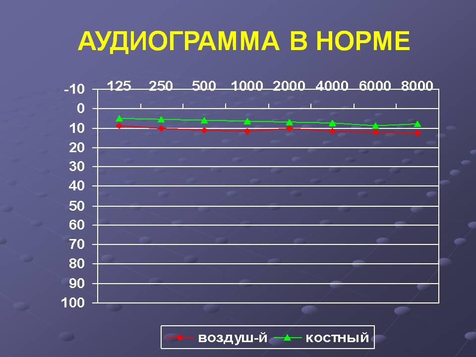 Аудиограмма: расшифровка аудиограммы слуха, зубец кархарта, таблица норма