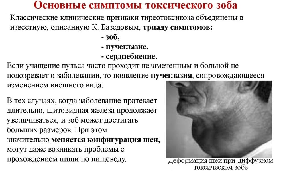 Тиреотоксикоз щитовидной железы — что это такое, симптомы, лечение, последствия. питание и диета при тиреотоксикозе щитовидной железы
